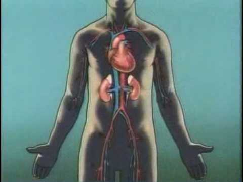 Dialysis For Kidney Disease video