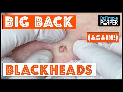 The Third Return of Big Back Blackheads!  Dr Pimple Popper thumbnail