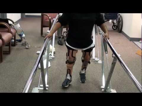 New Leg Braces