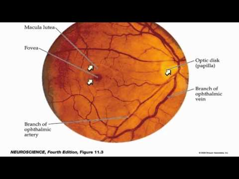 aniridia a panocular developmental malformation essay Gene deletion, cornea, iris - aniridia: a panocular developmental malformation.