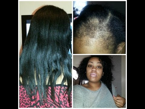 Hair woes: Postpartum alopecia hair loss, Hairfinity, Hair journey