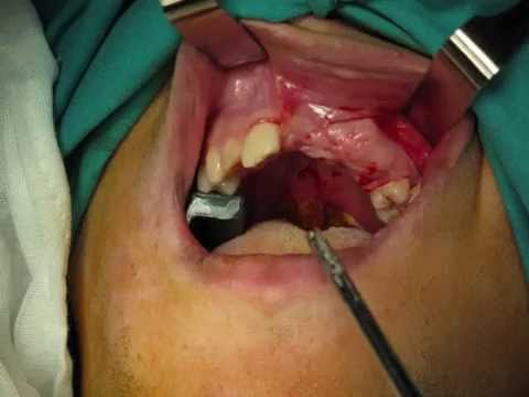 ORAL SURGERY- BONE GRAFTING