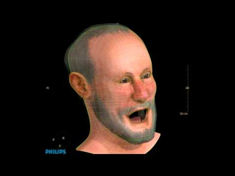 Henri IV - forensic facial reconstruction/approximation