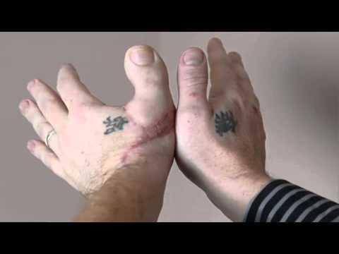 IMPLANTE DEL DEDO DEL PIE EN LA MANO. James Byrne. Cirugías extremas