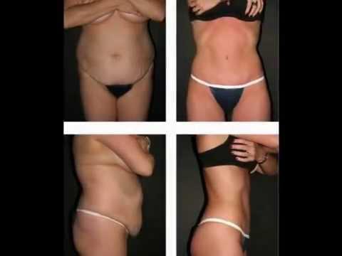 люди похудевшие за 2 месяца