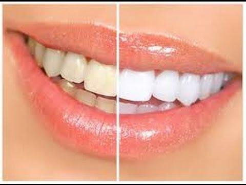 Come avere denti più bianchi: tutto ma proprio tutto sullo sbiancamento!