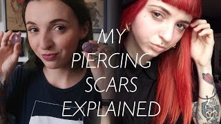 My Piercing Scars Explained!
