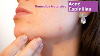 Acné. Mi mejor remedio casero natural para combatir el acné.