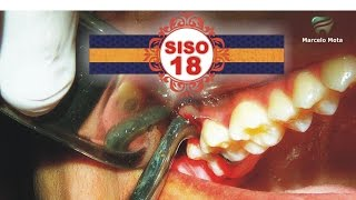 EXTRAÇÃO DE SISO 18 / wisdom tooth Extraction Surgery