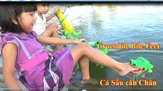 Thanh Băng Bị Cá Sấu Cắn Chân - Crocodile Bile Feel*_*Baby channel
