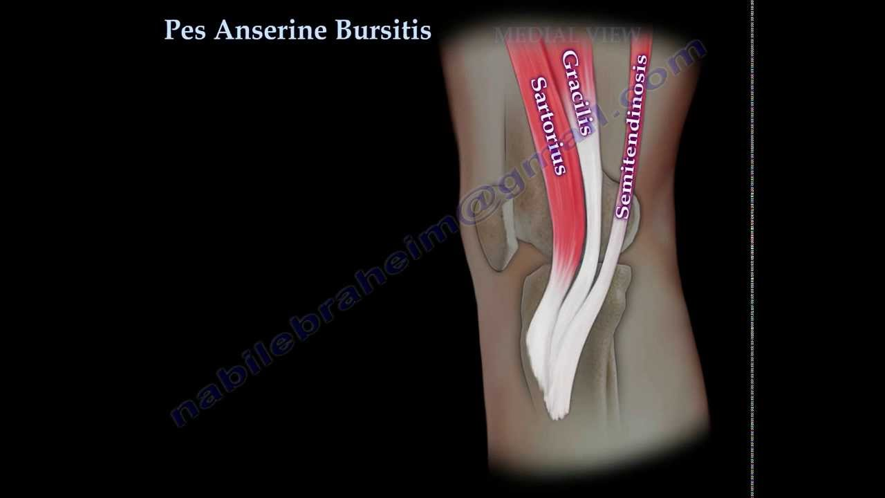 Pes Anserine Bursitis , knee pain - Everything You Need To ...