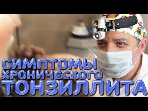 0 - Тонзиліт: симптоми та лікування – Сповнений життя