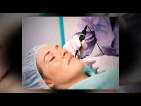 Eliminate Your Acne Scars With An Acne Scar Laser Treatment