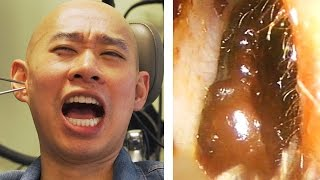 Asians Get Earwax Extractions For The First Time