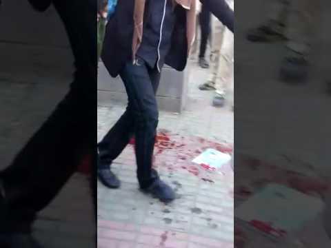 فيديو : طالب يفجر قنبلة بالخطاء في وجه زملائه في مدرسة بصنعاء وسقوط 14 طالب بين قتيل وجريح