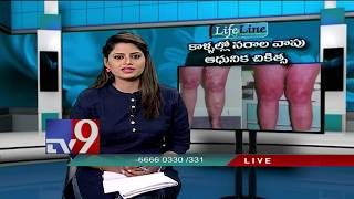Varicose Veins and Varicose Ulcer || Modern treatment || LifeLine