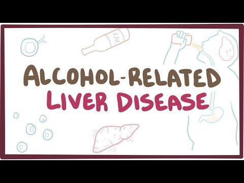 Alcohol-related liver disease - an Osmosis preview