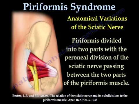 Piriformis Syndrome , sciatica  - Everything You Need To Know - Dr. Nabil Ebraheim