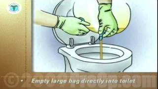 PostCare™ Patient Education Emptying a Urinary Drainage Bag