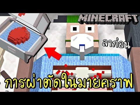 การผ่าตัดสุดสยองในมายคราฟ !! จะรอดมั้ย   Minecraft [zbing z.]