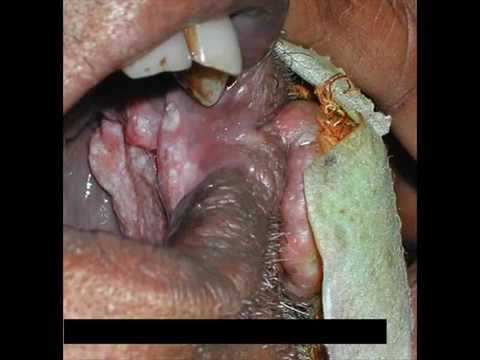 oral cancer, tobacco and smoking