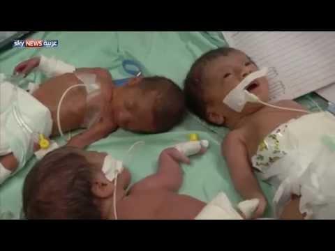 13 مليون طفل خدج يولدون سنوياً