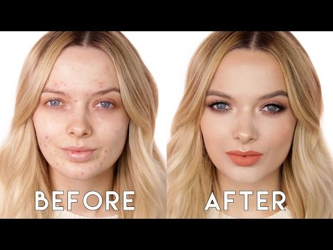 Acne Coverage Soft Glam Makeup Tutorial // MyPaleSkin /ad