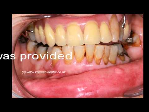 partial and complete dentures by Vaswanidental at Southgate N14 close to Winchmore Hill N21.