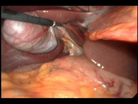 Cirugía de Vesícula Biliar Colecistectomia por Laparoscopía