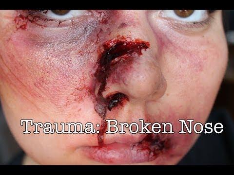Trauma: Broken Nose