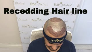 Hair Transplant Istanbul || video reviews