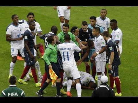 France vs Honduras (3-0) Fifa World Cup 2014 Brazil [Group E] HD Slideshow 15 June, 2014