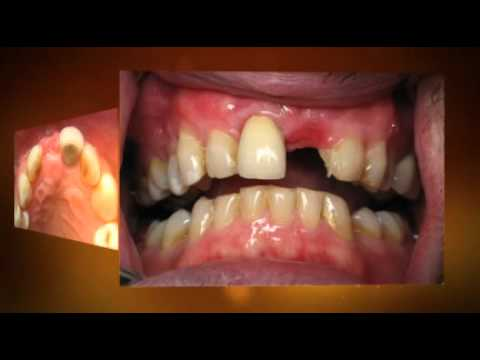 Front Dental Implant - 1 hour, Same Day
