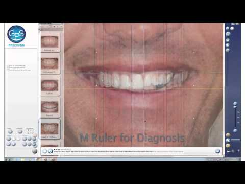 Dental GPS System Description Video