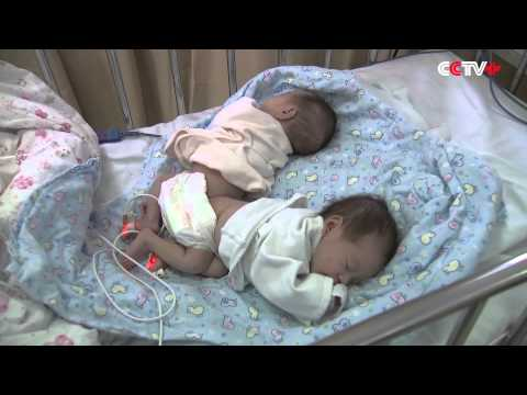 3D Printing Technology Aids Separation of Conjoined Twins in Shanghai, China