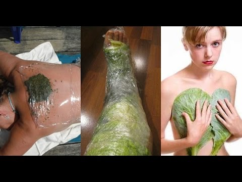 natural remedies for guttate psoriasis