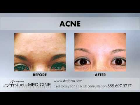 Aesthetic Medicine - Before and After ACNE