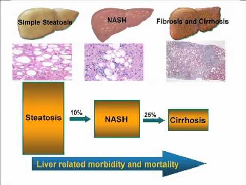 Liver Update - Ep. 3 - Fatty Liver Disease, Alcoholic Liver Disease, and Cholestatis