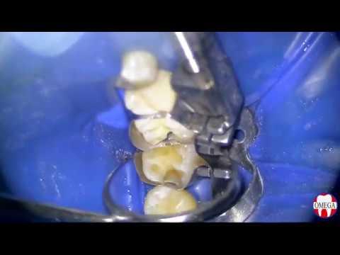 Лечение кариеса с использованием окклюзионного шаблона в полости MOD