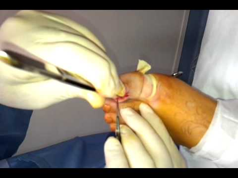 Wedge resection of a nail under local anaesthesia
