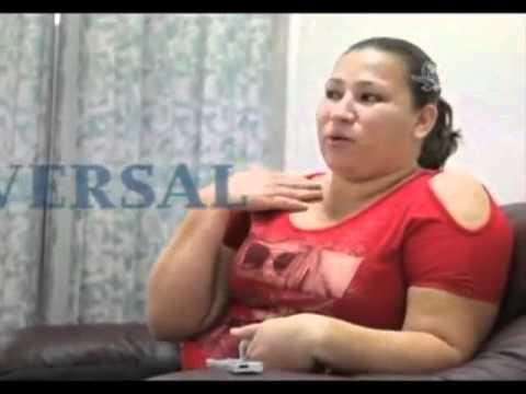 Una bomba incrustada en el rostro de una mujer