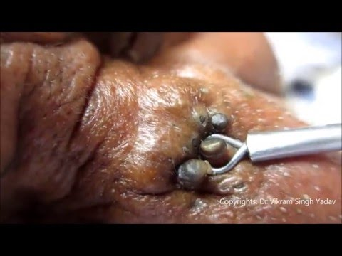 Gold Mine Of Black Heads On Nose video