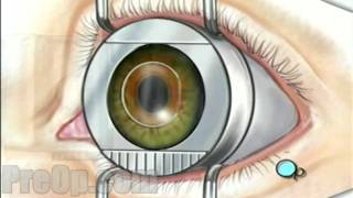 Laser Eye Surgery PreOp® Patient Education