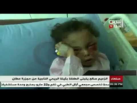 فيديو: علي عبدالله صالح يعلن تكفله بعلاج واعاشة الطفلة بثينة الريمي على نفقته الخاصة