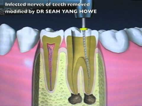 Root Canal Treatment Singapore
