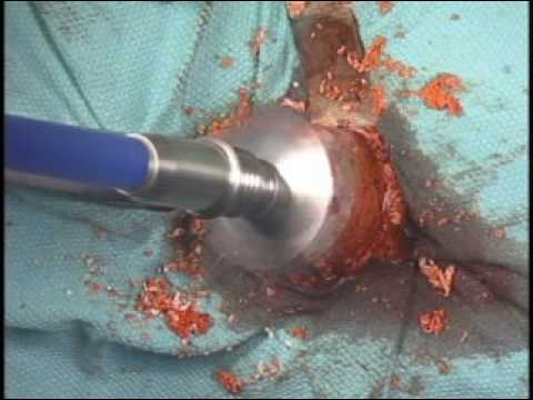 Anterior Hip Replacement Surgery