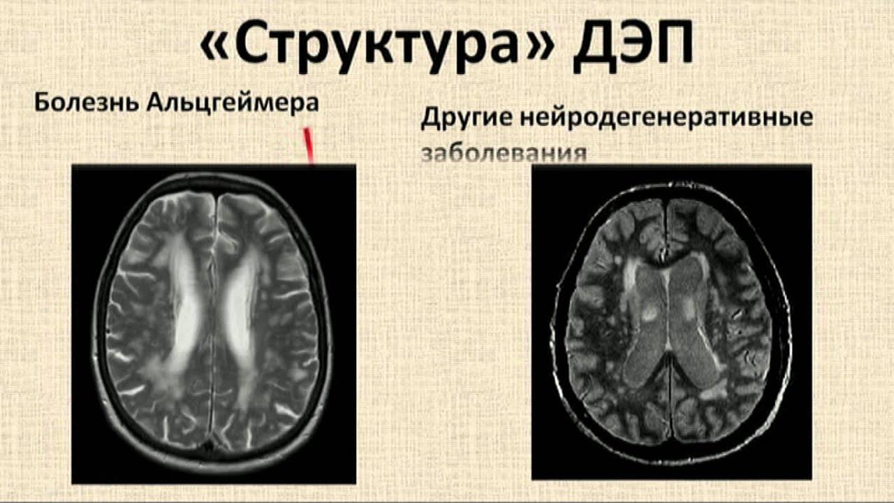 Энцефалопатия фото