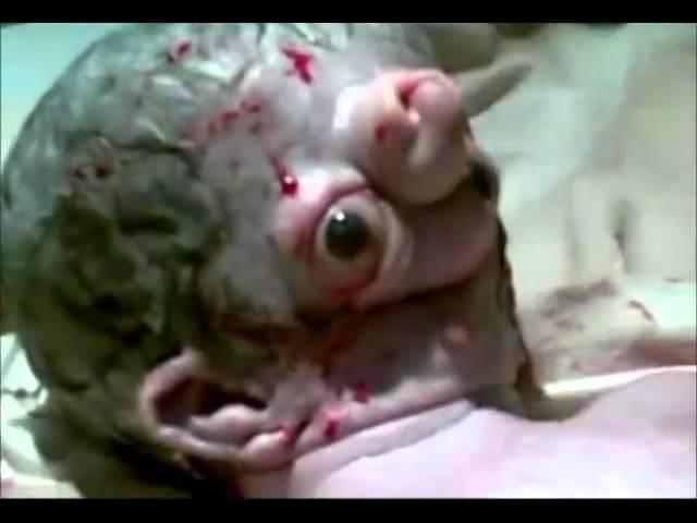 Bébé déformé en Egypte Warning Graphic