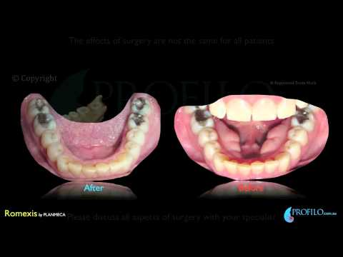 Orthognathic Jaw surgery & oral and maxillofacial surgery using CT 3D imaging