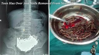 Teen Has Over 200 Nails Removed From Stomach